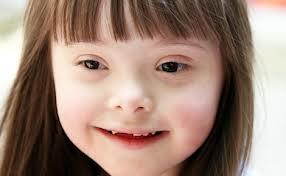 Down sendromu ile  otizmin bir arada görülmesi mümkün