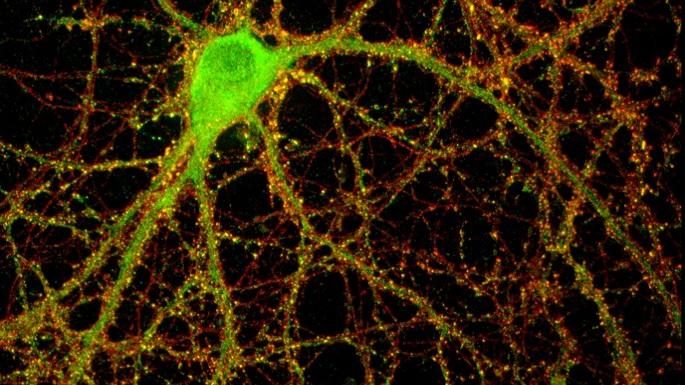 Bağışıklık Proteini Otizmde Anahtar Rol Oynayabilir