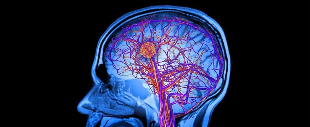 Şizofreni ve Otizmli Beyinlerin Antikorlara Tepkisi