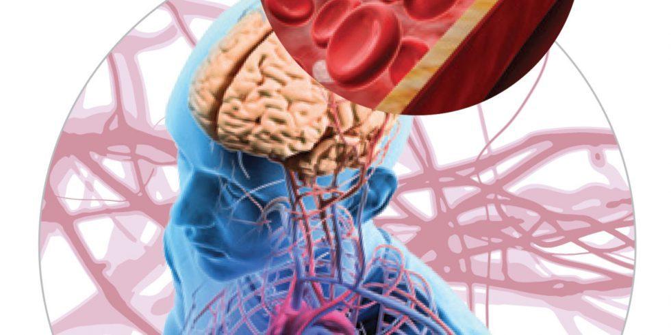 Huntington hastalığında beyinde önemli vasküler değişiklikler var