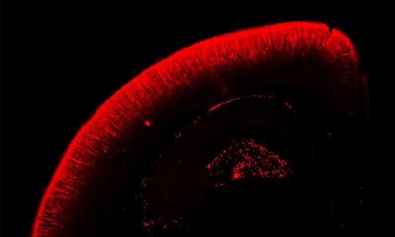 Otizm,Şizofreni ve Bipolar Bozuklukta  Gen Mutasyonu