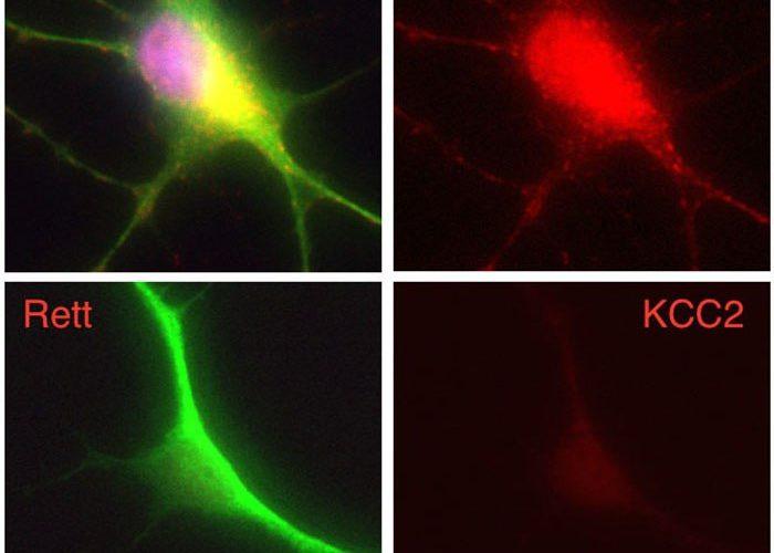 Otizmde Kayıp Halka KCC2 Molekülü Deniliyor